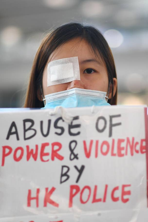 hong-kong-eye-protest-9
